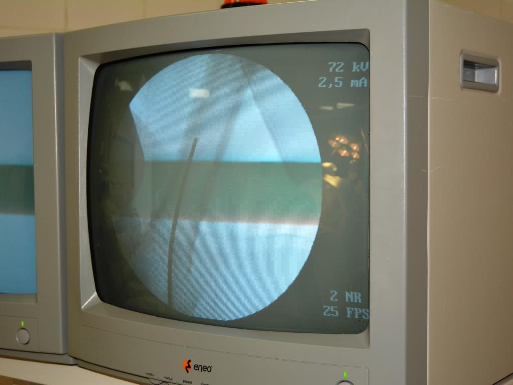 Областная больница ЕАО Травматологи 6